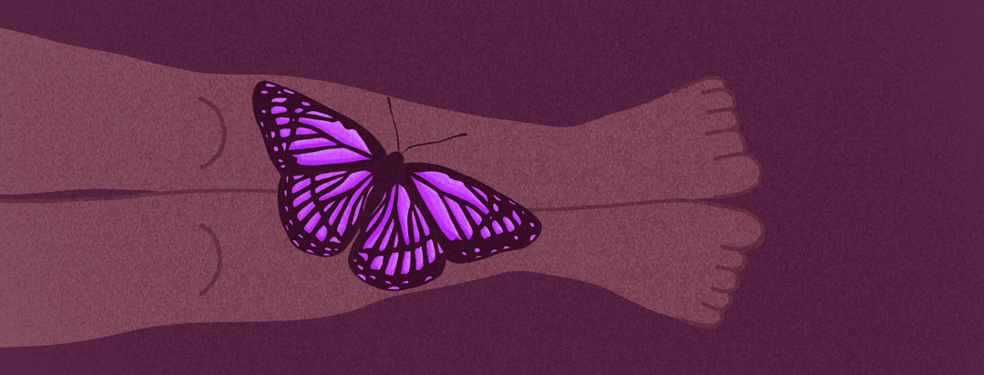 A pair of legs with a purple lupus butterfly landing on top of them.