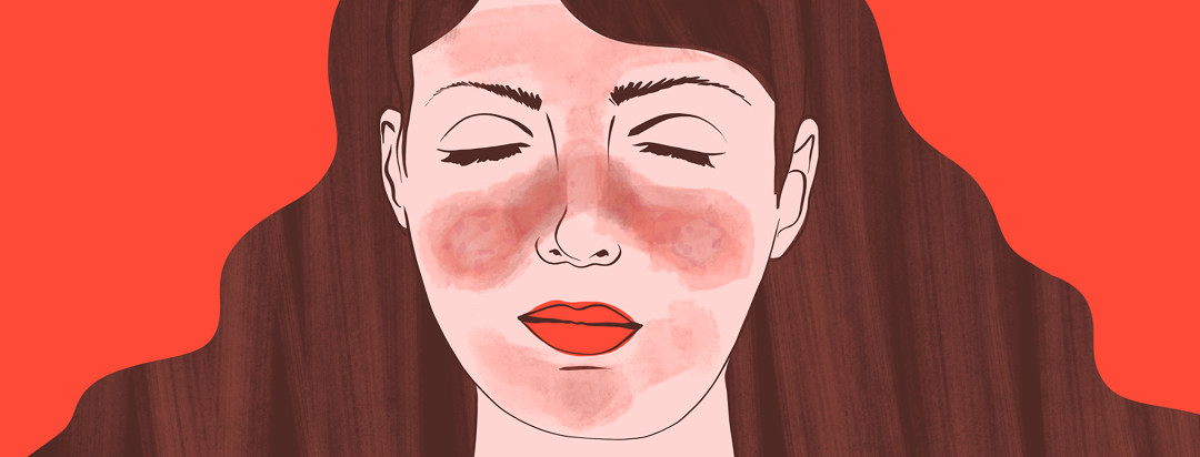 A woman with a malar rash across her face with he eyes closed.