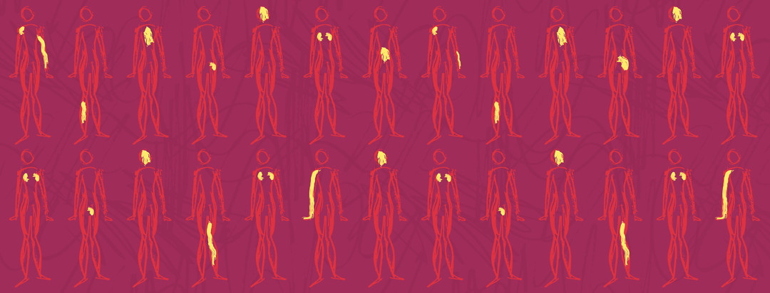 A pattern of bodies all looking the same but each highlighted with pain in different parts of the body affected by lupus.