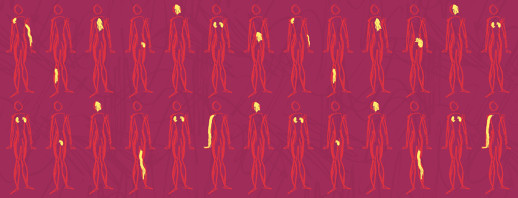 A pattern of bodies all looking the same, but within each a highlighted pain area in different parts.