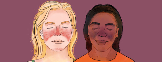 Scarring from Lupus Lesions and Rashes image