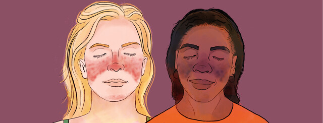 One white and one black woman with differently presenting butterfly rashes across their faces.